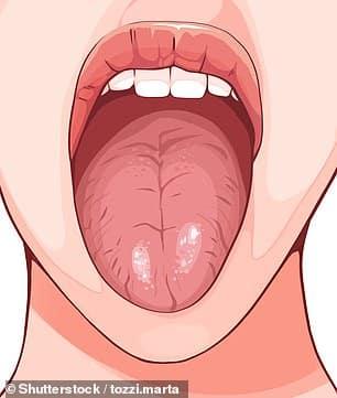 كيف يكشف لسانك عن صحتك بـ 7 علامات ؟ - المواطن