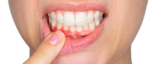 """استشارية لـ""""المواطن"""": نزيف اللثة علامة غير صحية لأسنانك"""