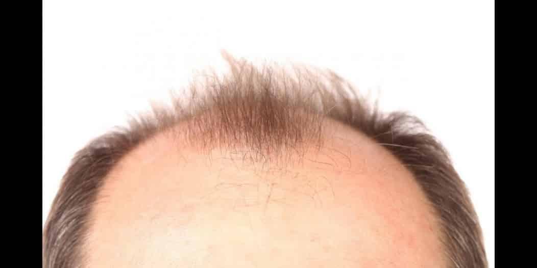 اكتشاف يعزز نمو الشعر ويسهل علاج الصلع