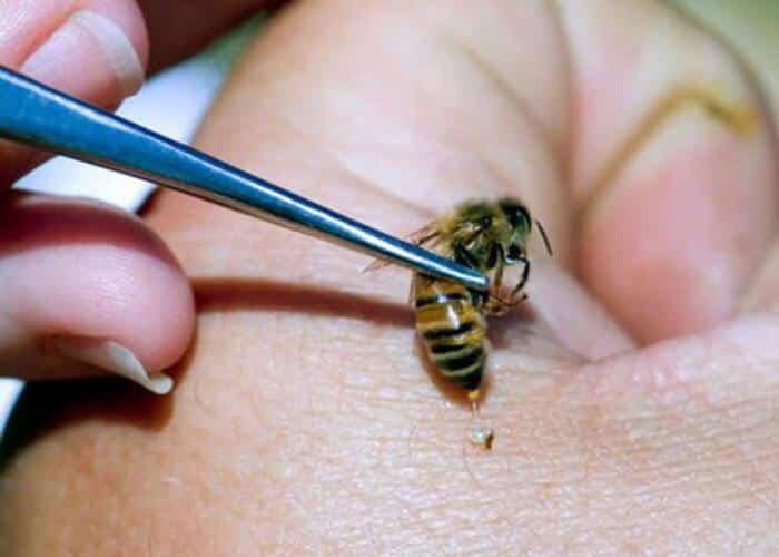 """استشاري يكشف لـ""""المواطن"""" سبب عدم انتشار العلاج بلسعات النحل"""