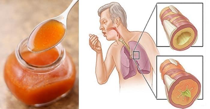 شراب الجزر علاج منزلي بسيط لعلاج السعال وإزالة البلغم (1)