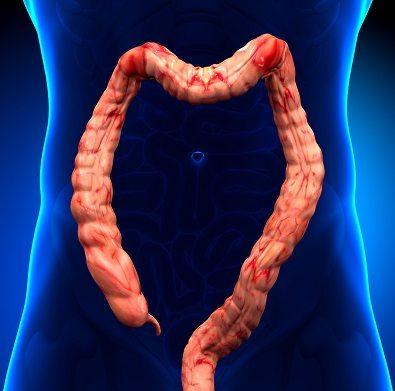 ما هو التهاب القولون التقرحي وما أسبابه وطرق الوقاية منه؟
