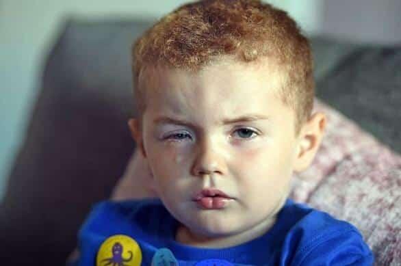قصة طفل أصيبت عيناه .. ابعدوا عن الصغار معقم اليدين