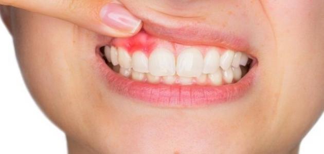 """استشارية لـ""""المواطن"""": ٥ مسببات لخراج الأسنان وهذا علاجه"""
