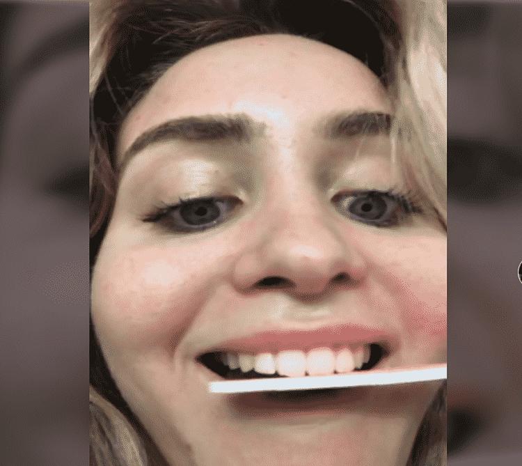 تحذير شديد اللهجة من أطباء الأسنان بعد تحدٍ جديد على Tik Tok