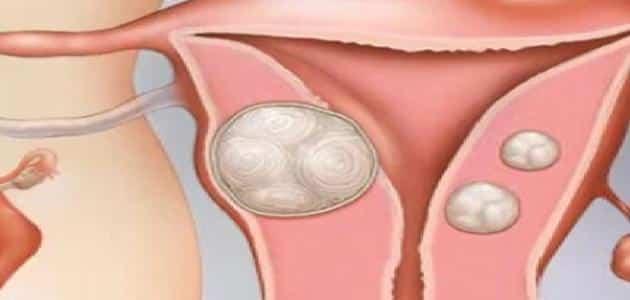 ما هي اعراض تليف الرحم أسبابه وعلاجه