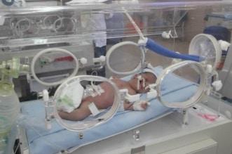 حالة نادرة.. ولادة طفل بقطع في الرقبة بمصر - المواطن