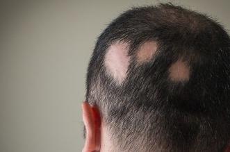 ما هو علاج ثعلبة الشعر