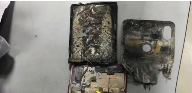 بالصور.. إصابة شاب هندي بحروق بعد انفجار هاتفه لسبب مجهول