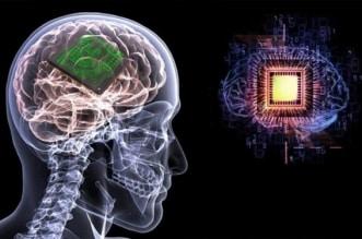 شريحة في الدماغ