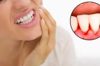 لا تتجاهل أسنانك عند خروج الدماء من اللثة - المواطن