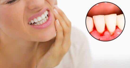 لا تتجاهل أسنانك عند خروج الدماء من اللثة