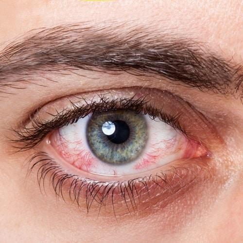 8 نصائح للوقاية من جفاف العين نتيجة استخدام الأجهزة الإلكترونية