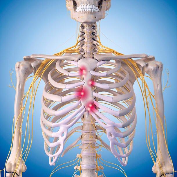 أعراض التهاب عظام القفص الصدري