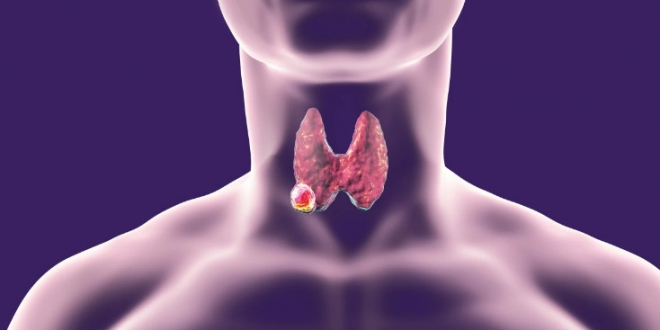 صورة كيفية علاج تضخم الغدة الدرقية السرطاني
