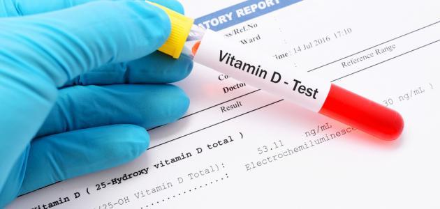 نسبة فيتامين د الطبيعية