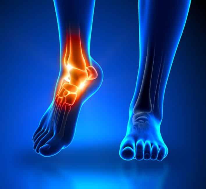 ما هي اسباب الم كعب القدم اليسرى وكيفية علاجه