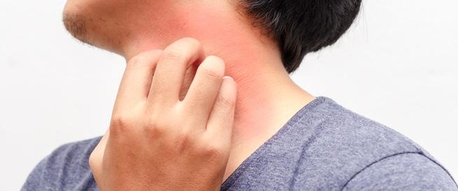 ما هي أسباب ظهور حبوب في الجسم مع حكة وكيفية علاجها