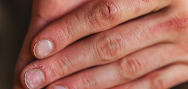اعراض نقص الكالسيوم والحديد