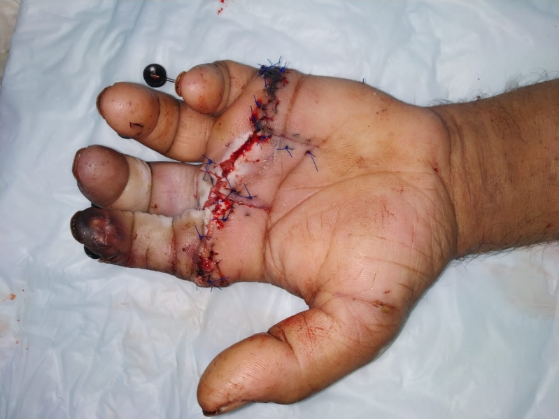 سعود الطبية: إنقاذ أربعيني من بتر أربعة أصابع