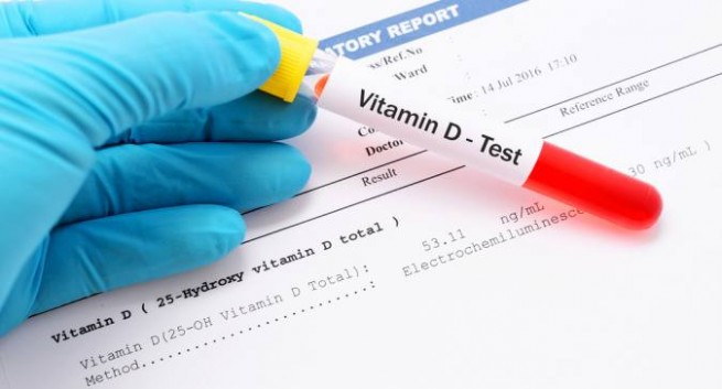 رمز تحليل فيتامين د