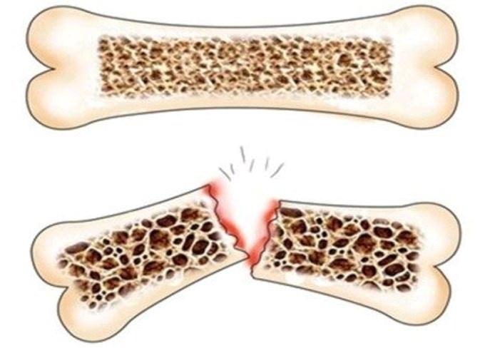 ما هي أنواع هشاشة العظام