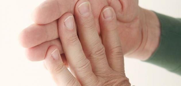 ما هي العلاقة بين نقص الكالسيوم والشعر