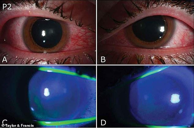 دراسة: استخدام الأضواء فوق البنفسجية قد يصيب العين بشدة
