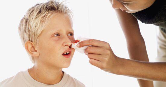 طريقة التعامل مع الأطفال المصابين بـ الرعاف في الصيف
