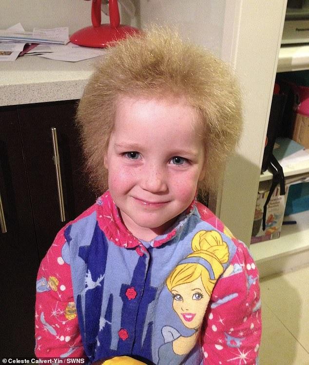 طفلة مصابة بـ طفرة وراثية تجعل شعرها غير قابل للتمشيط 1