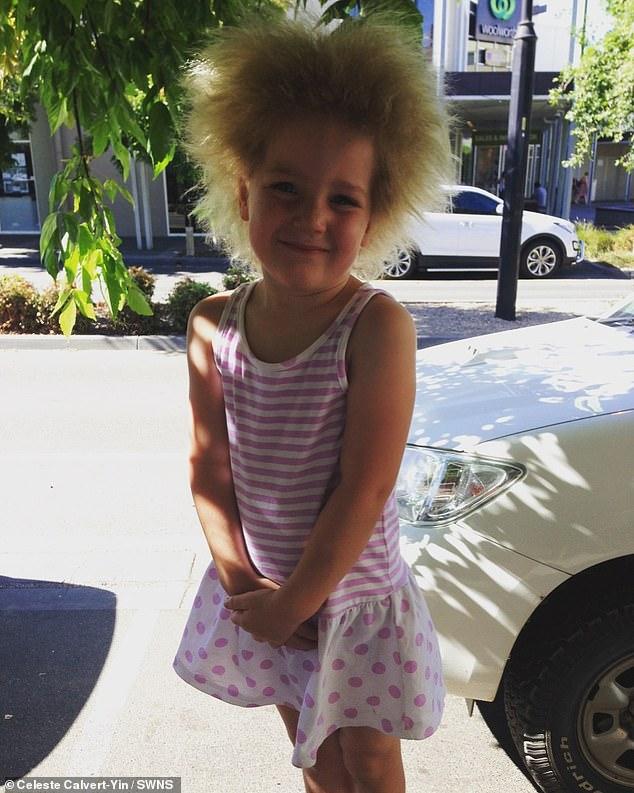 طفلة مصابة بـ طفرة وراثية تجعل شعرها غير قابل للتمشيط 2