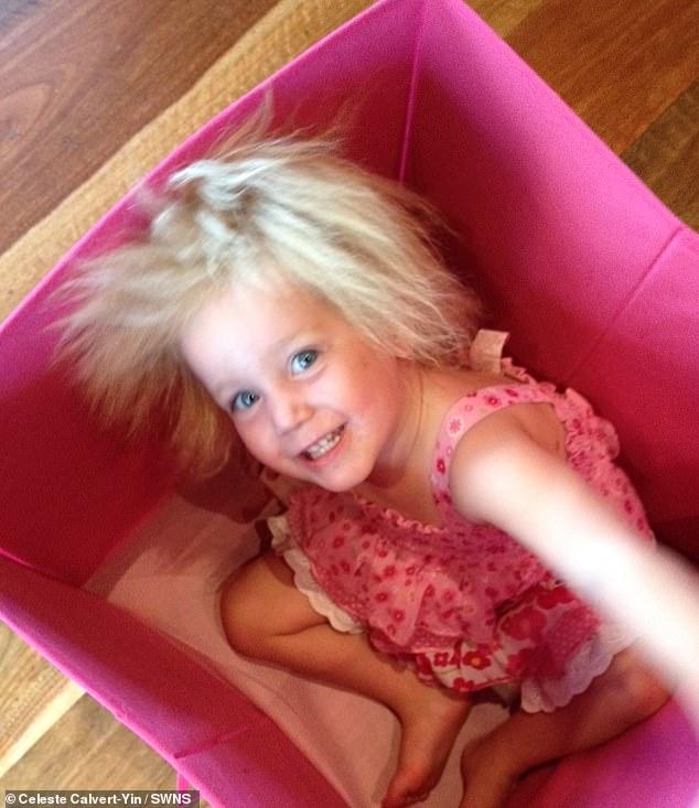 طفلة مصابة بـ طفرة وراثية تجعل شعرها غير قابل للتمشيط 5