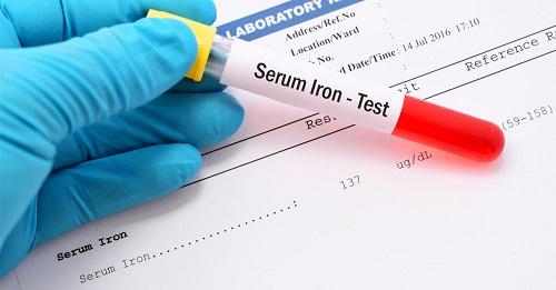 كم نسبة الحديد الطبيعية في الدم