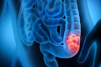 هل يمهد القولون العصبي لمرض السرطان؟ - المواطن