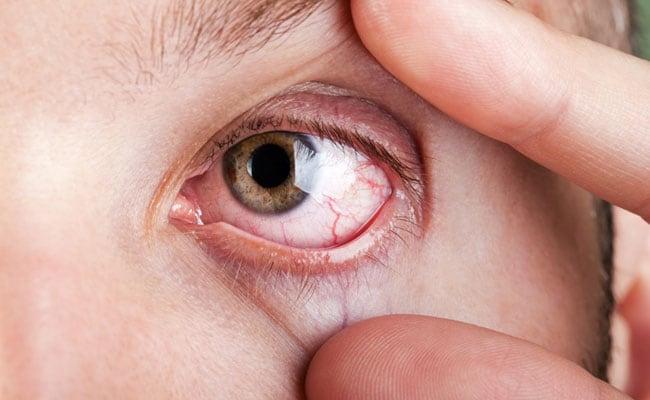 كيفية التخلص من جفاف العين بشكل طبيعي - المواطن