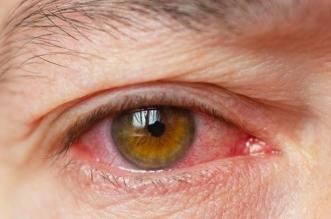 كيفية التخلص من جفاف العين بشكل طبيعي