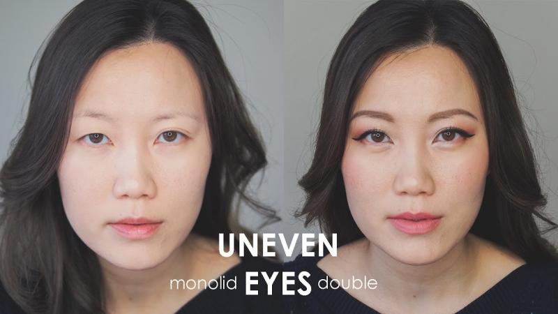 ما أسباب عدم تساوي العين ؟ (4)