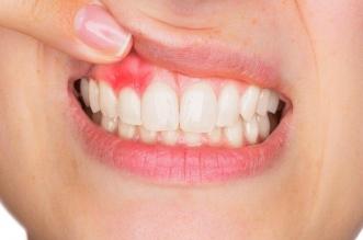 احذر من تجاهل إزالة بلاك الأسنان لهذه الأسباب - المواطن