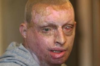 دمرت حياته.. امرأة تسكب مادة حارقة على وجه زوجها أثناء نومه - المواطن
