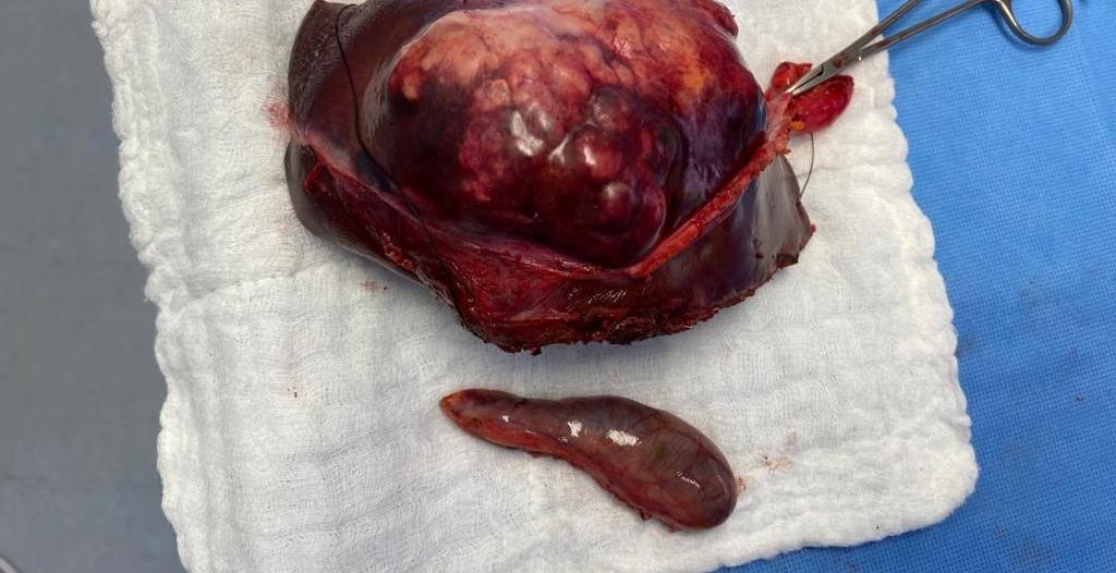 جراحة لأول مرة في عسير لاستئصال فص كبدي بالمنظار الجراحي