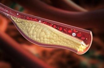 تعرض 4 مناطق للألم يدل على ارتفاع الكوليسترول الضار
