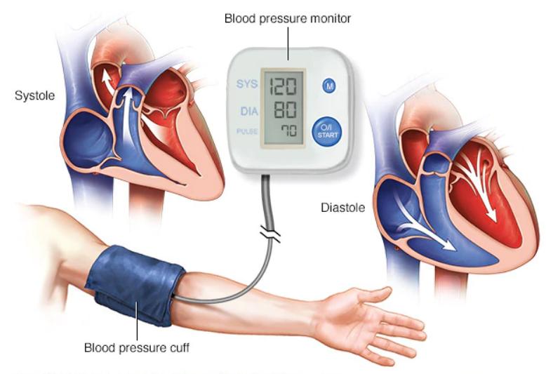 4 أعراض نادرة تدل على ارتفاع ضغط الدم الخطير (1)
