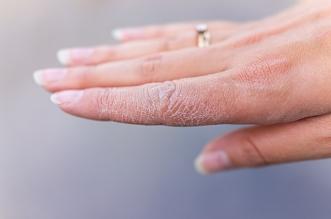 الجلد الجاف قد يكون علامة على مرض مزمن