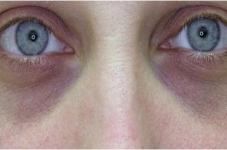 احذر زرقة الجلد تحت العينين قد تكون مؤشرًا لهذه الأمراض (3)