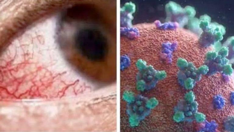 اعراض الفطر الاسود الجديدة قد تتشابه مع الجيوب الأنفية