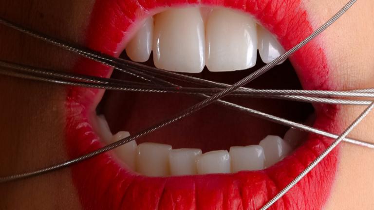 جهاز مبتكر لغلق الفم من أجل إنقاص الوزن !