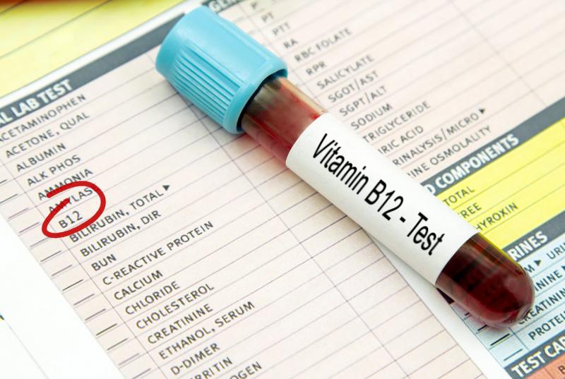 4 علامات تدل على نقص خطير لـ فيتامين ب 12 - المواطن