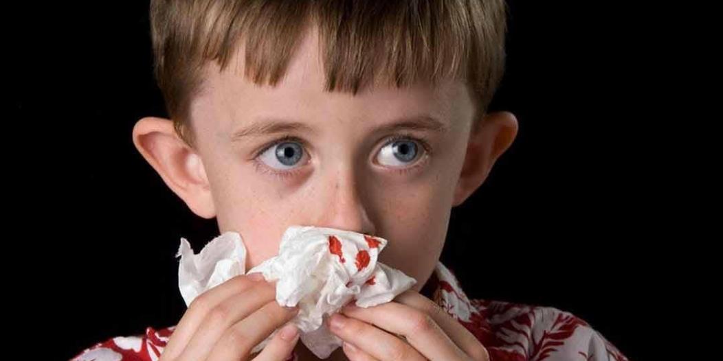 طبيب أنف: انتبهوا من تكرار حدوث الرعاف عند الأطفال