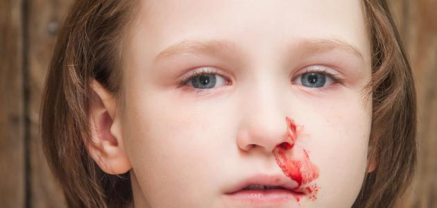 طبيب أنف: انتبهوا من تكرار حدوث الرعاف عند الأطفال - المواطن