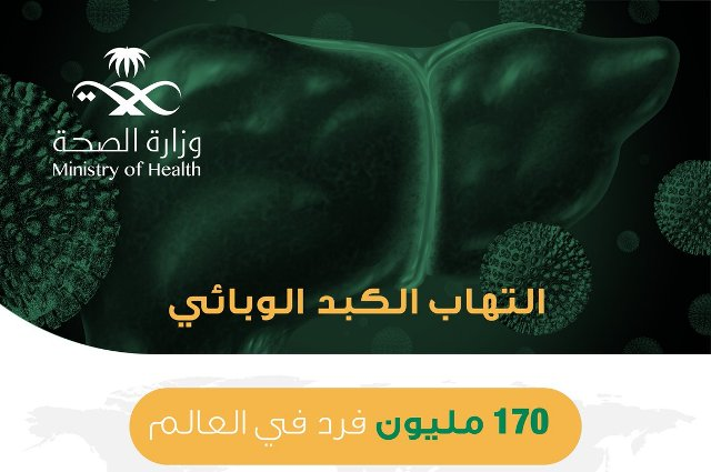 الصحة: أعراض الإصابة بالتهاب الكبد الوبائي لا تظهر إلا متأخرة فبادر بالفحص